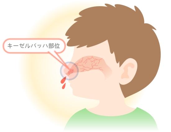 鼻血がでる血管がある位置0715-2
