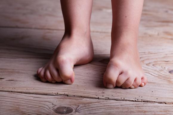子供の足をしもやけから守るケアをしている様子