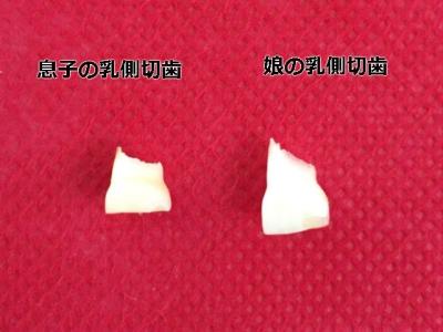 歯ぎしりをしていた子の歯(正常な状態の半分位の大きさ)