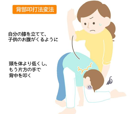幼児から使える、背部叩打変法のやり方