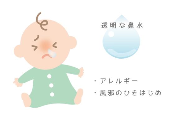 赤ちゃんの透明の鼻水0627-1