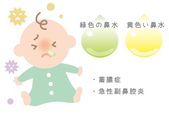 赤ちゃんの鼻水が黄色や緑色の場合0627-1