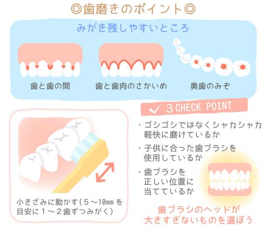 子供の歯を虫歯から守るための3つのポイント