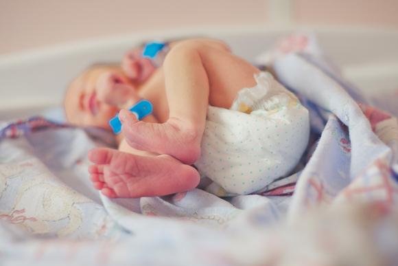 鼠経ヘルニアの手術をする赤ちゃん