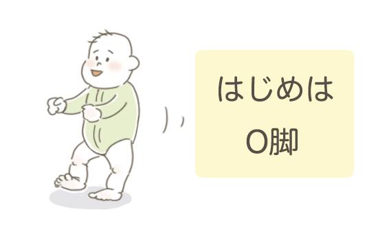 O脚の赤ちゃん
