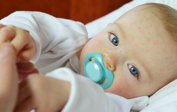 湿疹が出ている赤ちゃん
