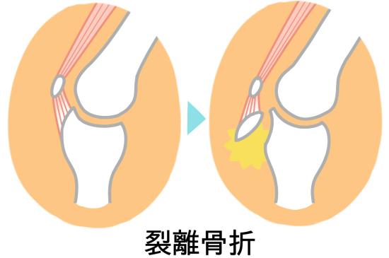 Avulsion fracture