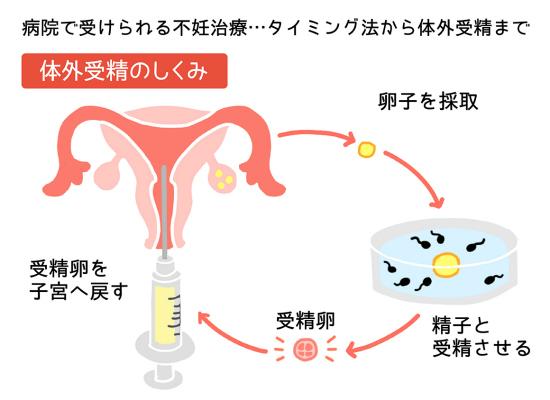 -In vitro fertilization