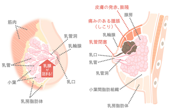 Mastitis risk and care