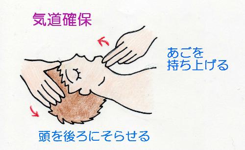 気道確保の方法