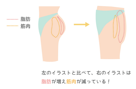 筋肉が減少したおしり0809-1