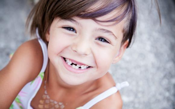 乳歯が抜けた子供