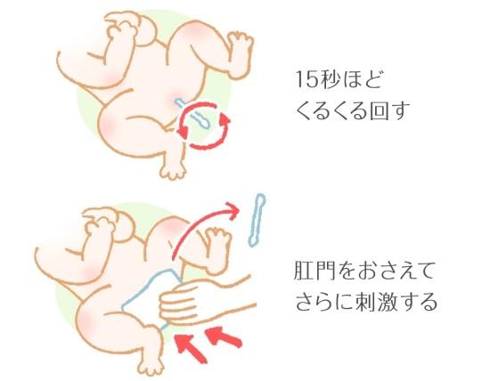 綿棒浣腸のやり方と注意点13159