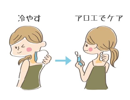 アロエのケア方法