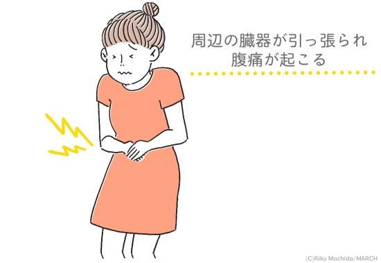 腹痛の原因